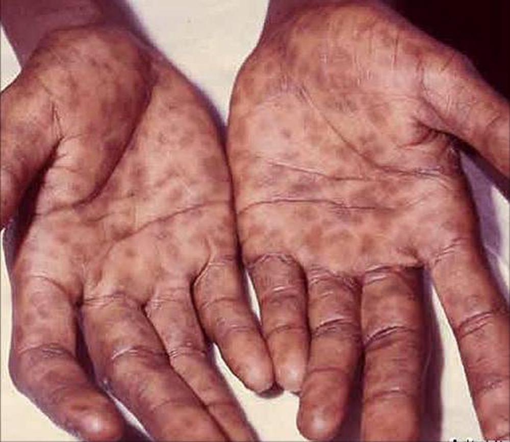 Syphilis-hands