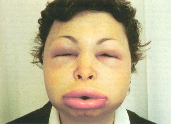 Angioedema-5