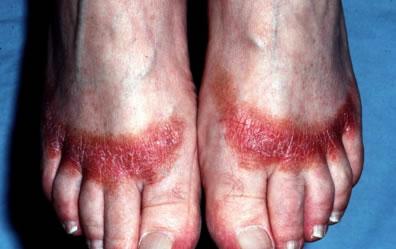 contact-dermatitis-feet