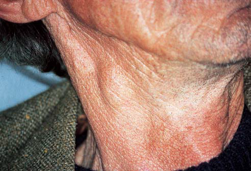 cervical lymph-node swelling from a posterior lateral squamouscell
