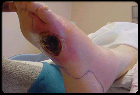 diabetes_foot_problems_s12_ulcers