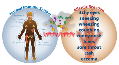 allergiesintro