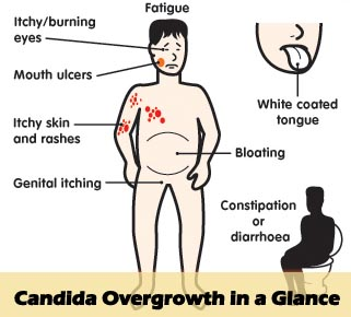candidainfections