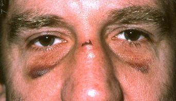 brokennoseeye