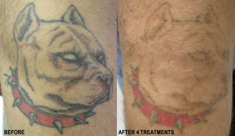 tattoo-removal incomplete