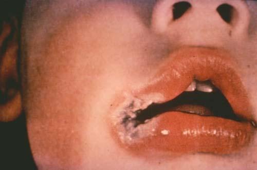 electrical lip-burn