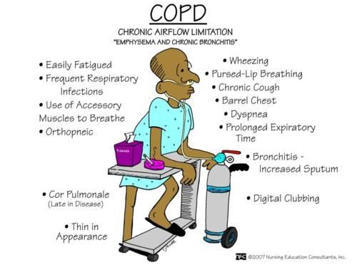 copd sx