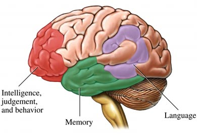 demenetia brain map