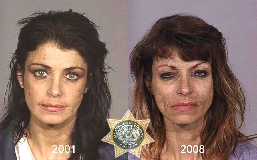 inhalant before and after