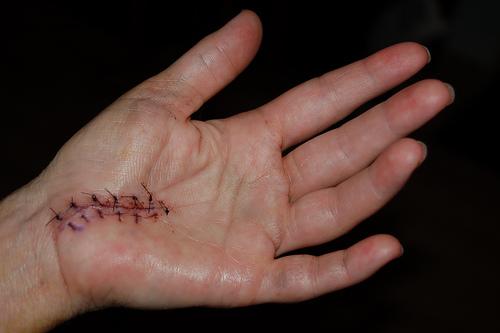 carpal-tunnel-surgery