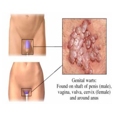 HPV genital warts