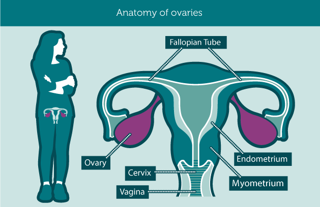 ovarian cancer anatomy