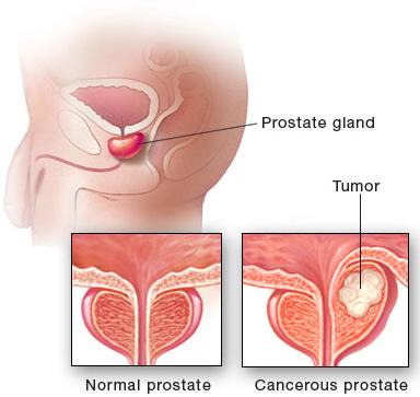 Prostate NormalCancer