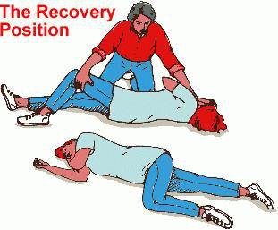Seizure-recovery-position