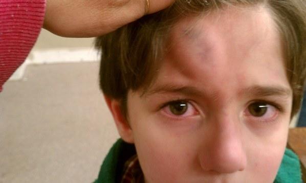 Shaken baby head trauma