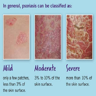 Psoriasis-Classification