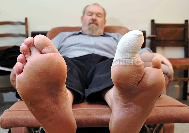 diabetic toe amputation