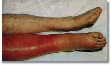 Deep-Vein-Thrombosis-Homeopathic