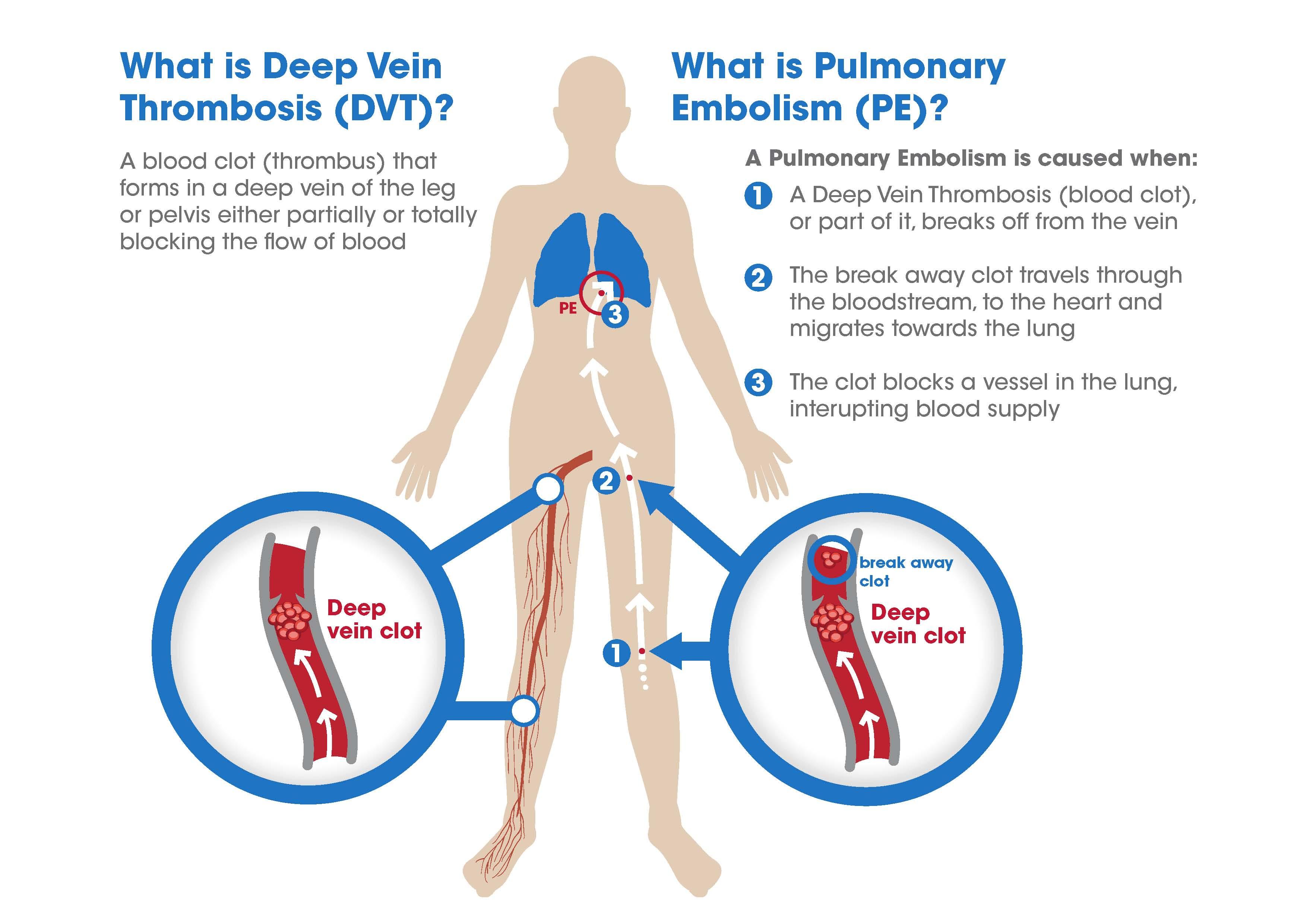 Pulmonary Embolism_large