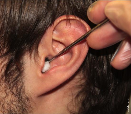 FB+ear