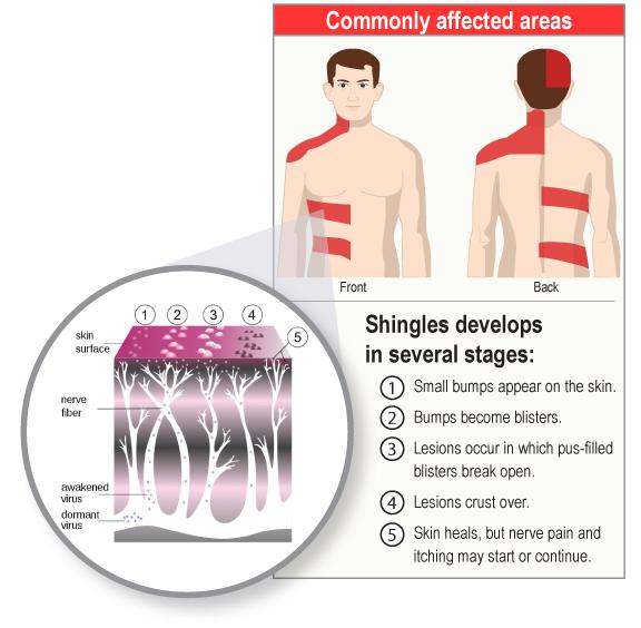 shinglescommon