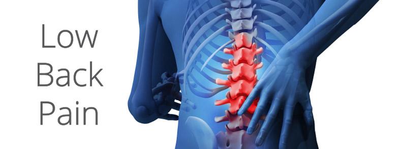 low-back-pain-image