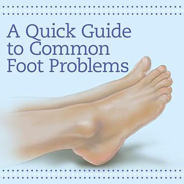 footproblems